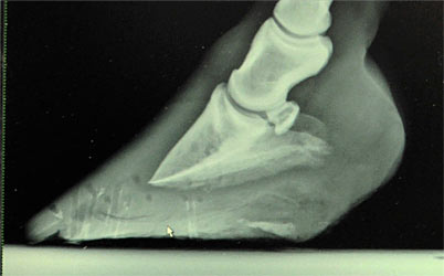 Laminitic hoof after Nolan Hoof Plates (15-week treatment period).